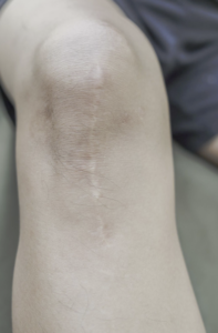 Minimize Post Surgical Scars