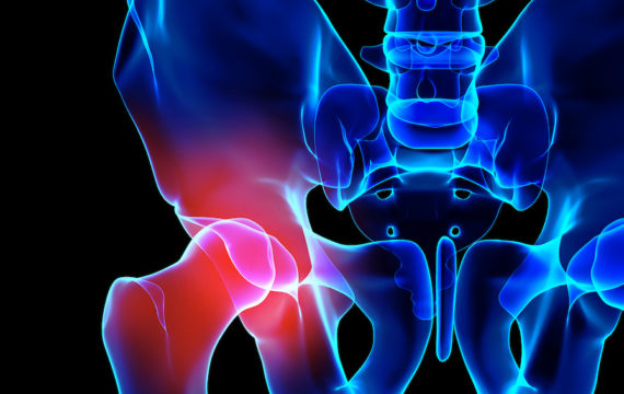 Conditions Leading To Hip Replacement Surgery