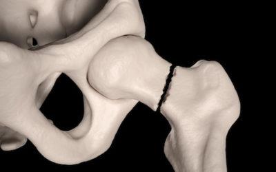 Understanding Hip Fractures